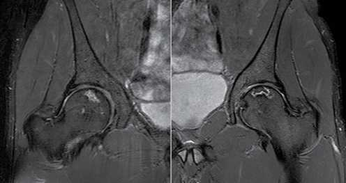Figura 2. Imagem de ressonância magnética dos quadris mostrando o acometimento bilateral sem colapso das articulações: A) direita, B) esquerda.