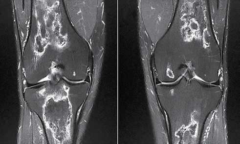 Figura 3. Imagem de ressonância magnética dos joelhos mostrando o acometimento bilateral sem colapso das articulações: A) direita, B) esquerda.