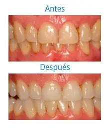 Estética Dental 0