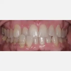 Orthodontics for adults. Lingual Orthodontics. Anterior crossbite and overcrowding 0