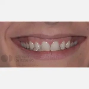 Lingual Orthodontics. Overbite excess, gingival smile, mild upper overcrowding 0