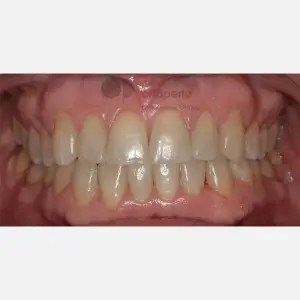 Orthodontics for adults. Lingual Orthodontics. Anterior crossbite and overcrowding 11