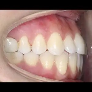 Lingual Orthodontics. Treatment of complex malocclusion class III and open bite in adult patient 11