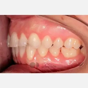 Lingual Orthodontics. Overbite excess, gingival smile, mild upper overcrowding 9