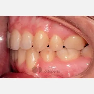 Lingual Orthodontics. Class III, open bite, severe overcrowding, extractions. 10