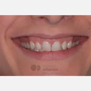 Lingual Orthodontics. Overbite excess, gingival smile, mild upper overcrowding 12