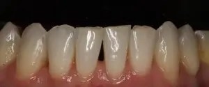 Closure of black triangles in lower incisors with composite veneers 1