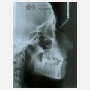 Lingual Orthodontics. Impacted canines. Multidisciplinary case: Orthodontic treatment and Implants 16