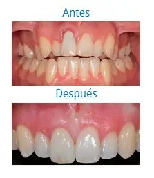 Estética Dental 8