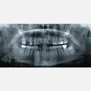 Lingual Orthodontics. Impacted canines. Multidisciplinary case: Orthodontic treatment and Implants 0