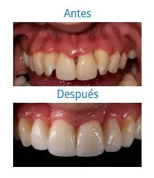 Estética Dental 1
