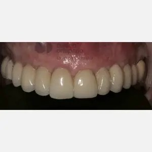 Dental implants without surgery 2