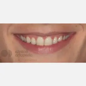 Lingual Orthodontics. Overbite excess, gingival smile, mild upper overcrowding 1