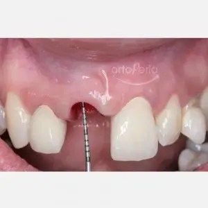 Orthodontic extrusion to regenerate papillae + Immediate implants + Aesthetic prosthesis 3