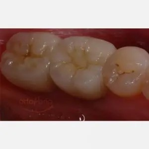 Cosmetic implantology in molars 1
