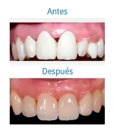 Estética Dental 9