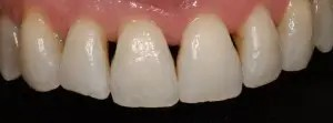 Closure of black triangles in upper incisors with composite veneers 1