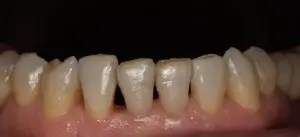 Restoration of incisors and upper canines wear with composite veneers 0