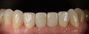 Restoration of incisors and upper canines wear with composite veneers 1