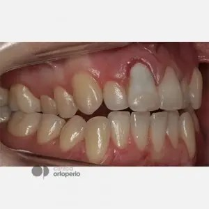 Corticotomy + Lingual Orthodontics + Post-extraction immediate implant 3