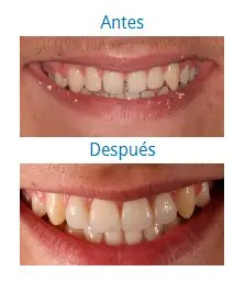 Estética Dental 2