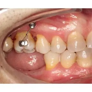 Molar intrusion with micro-implants, without orthodontic appliances 4