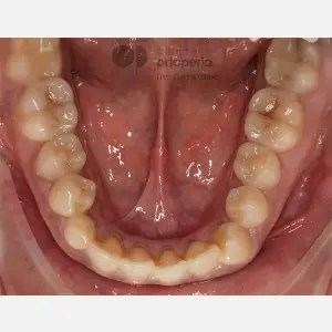 Lingual Orthodontics. Impacted canines. Multidisciplinary case: Orthodontic treatment and Implants 4