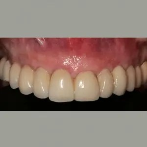 Dental implants without surgery 4
