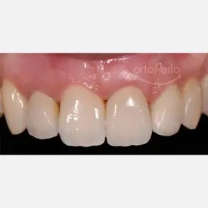 Orthodontic extrusion to regenerate papillae + Immediate implants + Aesthetic prosthesis 2