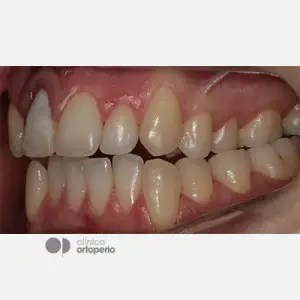Corticotomy + Lingual Orthodontics + Post-extraction immediate implant 4