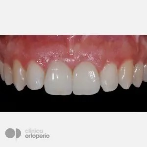 Lingual Orthodontics + Bone graft + Dental Implants + Zirconium crowns- Porcelain 4
