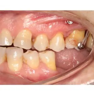 Molar intrusion with micro-implants, without orthodontic appliances 5