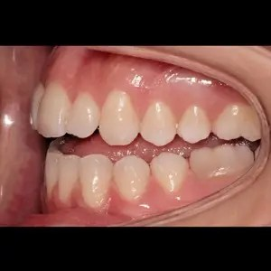 Lingual Orthodontics. Treatment of complex malocclusion class III and open bite in adult patient 5