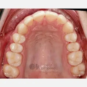Severe overcrowding. Lingual Orthodontics without extractions. Stripping 3