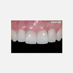 Porcelain veneers after aggressive periodontitis healing 3