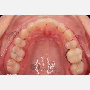 Lingual Orthodontics. Extraction of two premolars. Treatment of the upper arch only 3