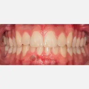 Invisalign orthodontics and connective tissue graft. Severe overcrowding 6
