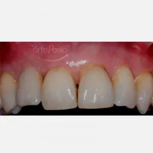 Bone graft+ implant (lateral incisor lost due to periodontitis) 2