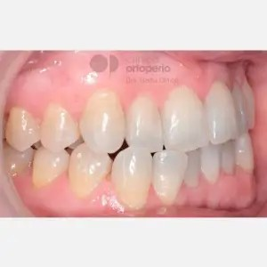 Orthodontics for adults. Lingual Orthodontics. Anterior crossbite and overcrowding 6