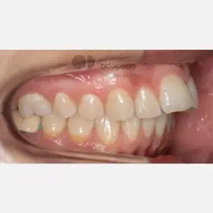 Lingual Orthodontics. Extraction of two premolars. Treatment of the upper arch only 4