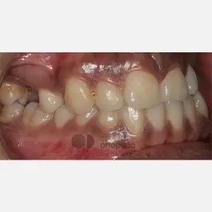 Lingual Orthodontics. Impacted canines. Multidisciplinary case: Orthodontic treatment and Implants 6