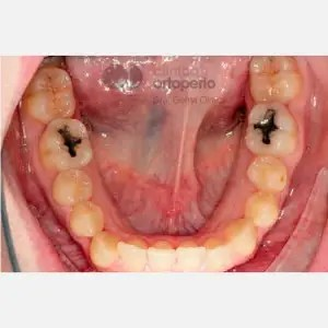 Lingual Orthodontics. Class III, open bite, severe overcrowding, extractions. 5