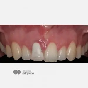 Corticotomy + Lingual Orthodontics + Post-extraction immediate implant 7