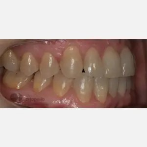 Orthodontics for adults. Lingual Orthodontics. Anterior crossbite and overcrowding 7