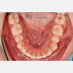 Severe overcrowding. Lingual Orthodontics without extractions. Stripping 5