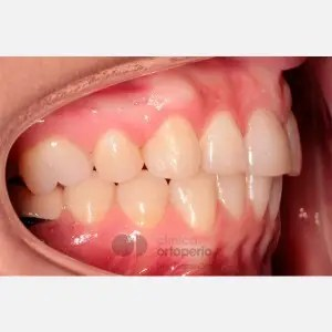 Lingual Orthodontics. Extraction of two premolars. Treatment of the upper arch only 5