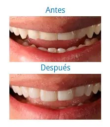 Estética Dental 5
