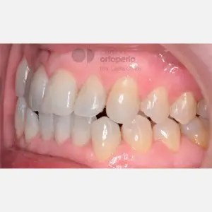Orthodontics for adults. Lingual Orthodontics. Anterior crossbite and overcrowding 8