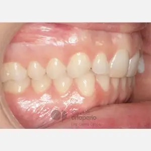 Lingual Orthodontics. Overbite excess, gingival smile, mild upper overcrowding 6