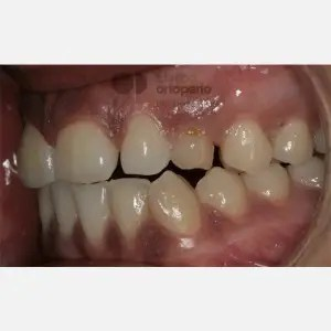 Lingual Orthodontics. Impacted canines. Multidisciplinary case: Orthodontic treatment and Implants 8